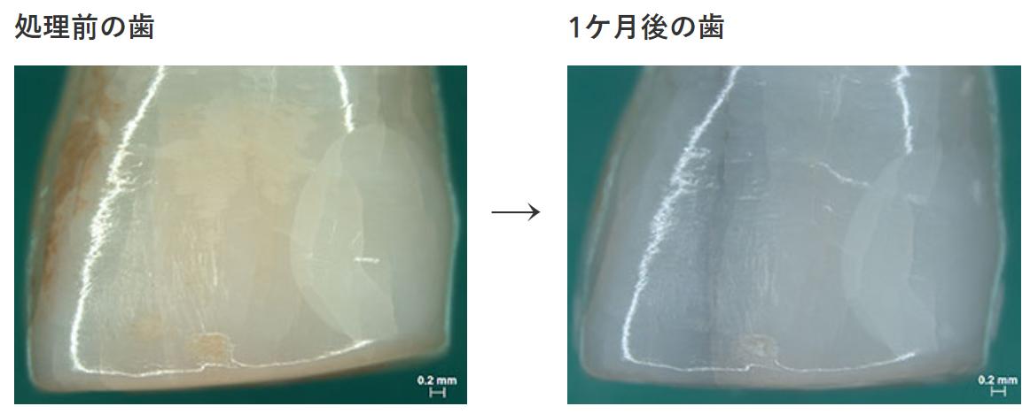 歯表面改質効果試験