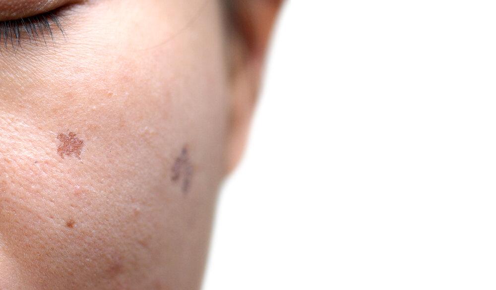 肌荒れによるシミ「炎症後色素沈着」