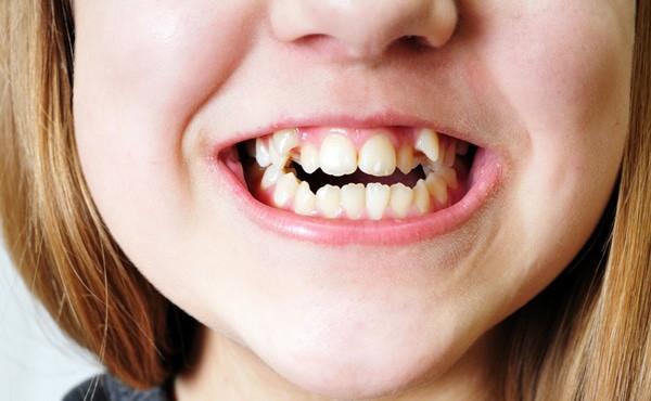 歯の種類|八重歯
