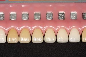 理想の歯|歯並び