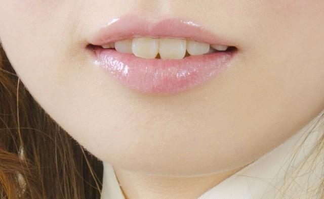 歯の形 前歯の形