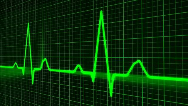 Free illustration: Pulse Trace, Healthcare Medicine - Free Image on Pixabay - 163708 (42738)