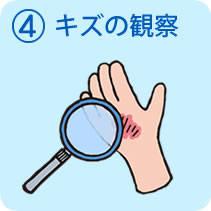 湿潤療法(モイストヒーリング)-東洋化学株式会社 (3157)