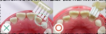 年齢別!仕上げみがきのポイント(6~12才)|親子でやろう!予防歯科!|HA!HA!HA!パーク(はははぱーく)|クリニカ (11793)