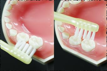 奥歯の外側・内側の磨き方