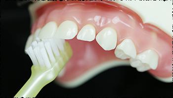 前歯の裏側