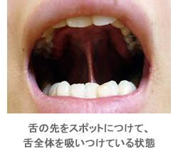 舌の癖と歯並びの関係(矯正歯科の豆知識) - 東大阪市の歯列矯正 大阪アート矯正歯科 (16180)
