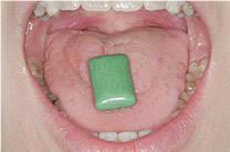口唇・舌トレーニング|矯正歯科 大阪【ほてい矯正歯科】 (16187)