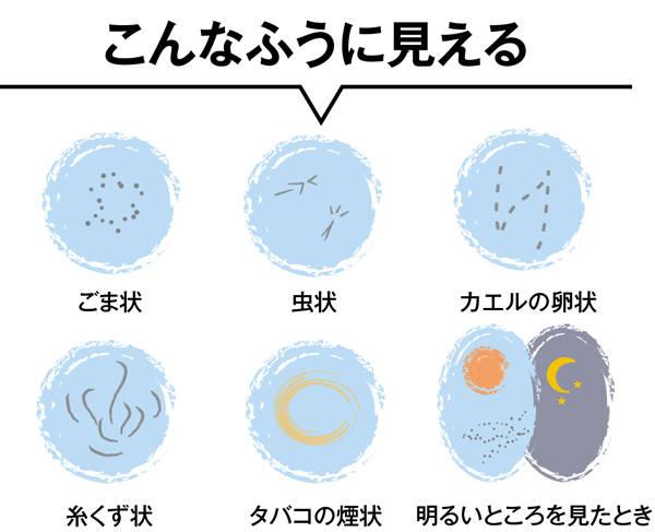 40,50代が知っておくべき「目の病気」⑤【飛蚊症】 | OurAge (81628)