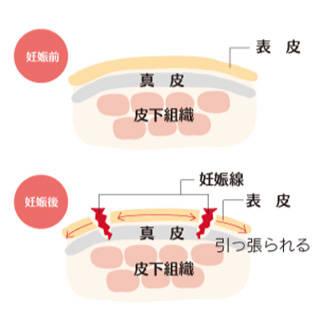 保湿と栄養補給で妊娠線を予防しよう!! | 赤ちゃんようこそ.com (87671)