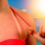 【アフターケアが鍵を握る】夏の日焼け治療はすぐ行うのがベスト◎