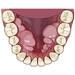 歯の噛み癖はどうしたらわかるの?簡単な見分け方と良い噛み癖とは