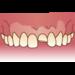 急に痛くなる歯!痛み方別の応急処置方法が知りたい!