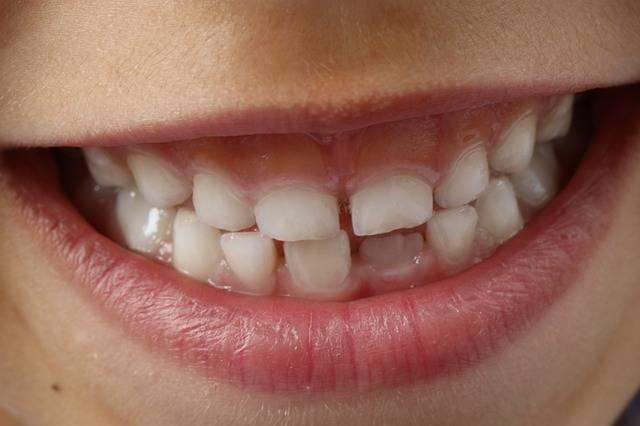 無料の写真: 歯, 子どもの笑顔, 子, 歯科, 笑顔歯, 衛生, クリーン - Pixabayの無料画像 - 1743981 (20)