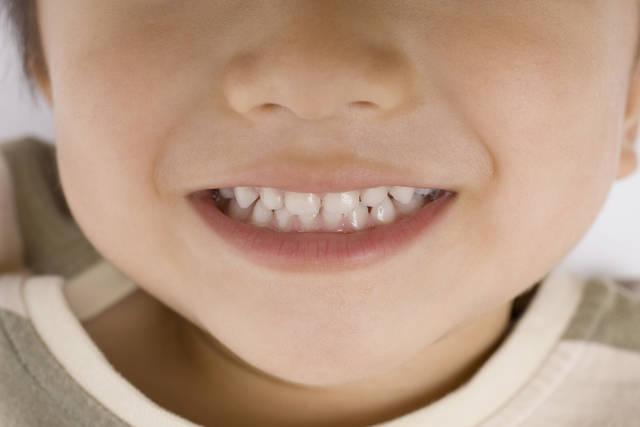子供の歯 -  無料ストックフォト、無料写真素材 (38)