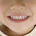 実はダメ!?糸を使った抜き方は子供の歯に良くないってホント?