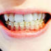 経済負担を軽くしたい!歯の矯正治療で医療費控除は受けられるの?