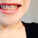 抜歯をするか非抜歯か?色々な歯の矯正治療