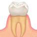 歯が長くなった?その原因は、、、?