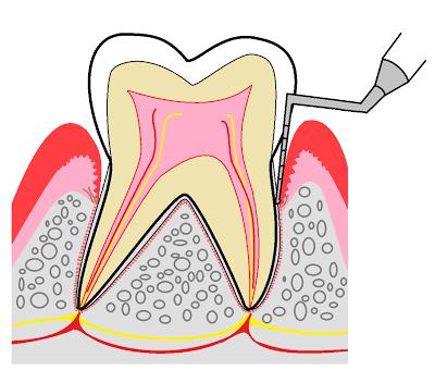歯医者・歯科医院の無料素材(イラスト・写真・配布物)ブログ: 歯周病検査のイラスト (989)