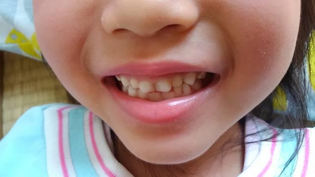子どもの歯 |写真素材なら「写真AC」無料(フリー)ダウンロードOK (1416)