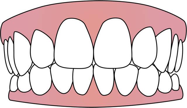 歯 - GATAG|フリーイラスト素材集 (1501)