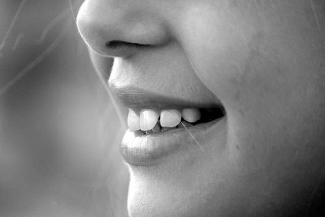 無料の写真: 笑顔, 口の中, 歯, 笑い, 鼻, 女の子, あご, 頬, 顔 - Pixabayの無料画像 - 191626 (2894)