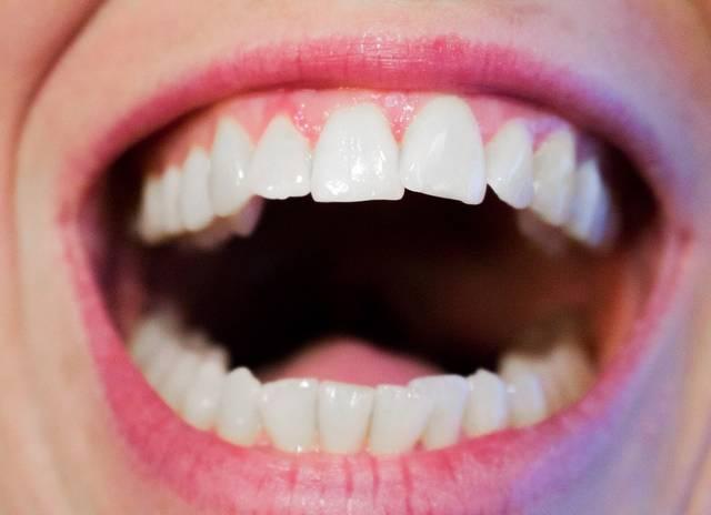 無料の写真: 歯, 歯科医, 歯科, 口, ホワイト, 衛生, 笑顔, 女性, 唇 - Pixabayの無料画像 - 1652937 (4242)