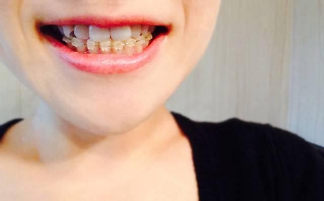 歯列矯正|写真素材なら「写真AC」無料(フリー)ダウンロードOK (4409)