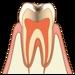 子供の歯が白いのに虫歯!?虫歯は茶色や黒じゃないの!?