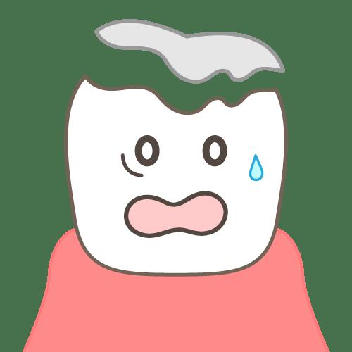 噛み合わせの影響:詰め物、かぶせ物が取れやすくなる(顔付き)|イラストNo.2156【歯科素材.com】 (5435)