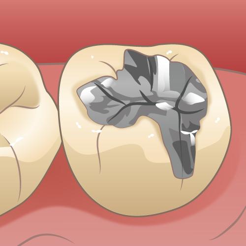 二次カリエス(虫歯のできていない状態)|イラストNo.1707【歯科素材.com】 (5436)