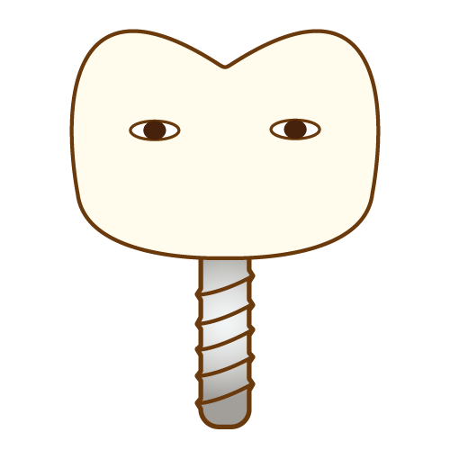 インプラント|イラストNo.477【歯科素材.com】 (7607)