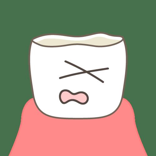 噛み合わせの影響:歯がすり減る(顔付き)|イラストNo.2157【歯科素材.com】 (7687)