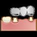 歯の被せ物「ブリッジ」が口臭の原因に繋がるってほんと?