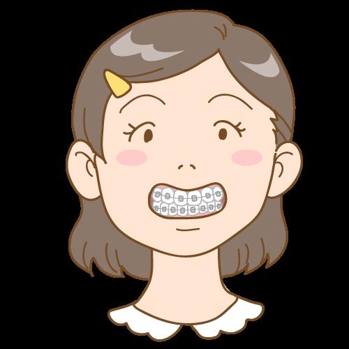 子供の矯正(ブラケット)|イラストNo.1644【歯科素材.com】 (7784)