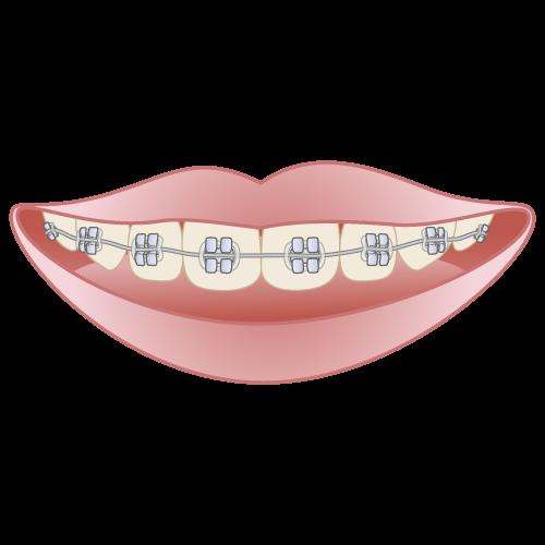 ブラケット|イラストNo.656【歯科素材.com】 (7791)