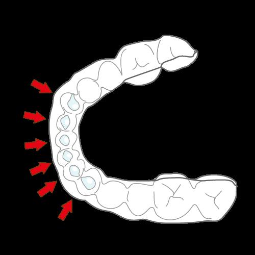 ホワイトニングトレー(解説)|イラストNo.941【歯科素材.com】 (7792)