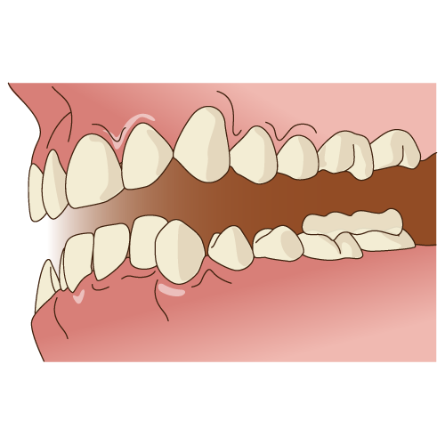 ボンディング後 開口バージョン|イラストNo.1251【歯科素材.com】 (7804)