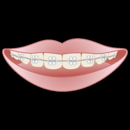 白いブラケット|イラストNo.657【歯科素材.com】 (7838)