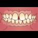 すきっ歯(空隙歯列)について|前歯に隙間があって歯並びが悪い