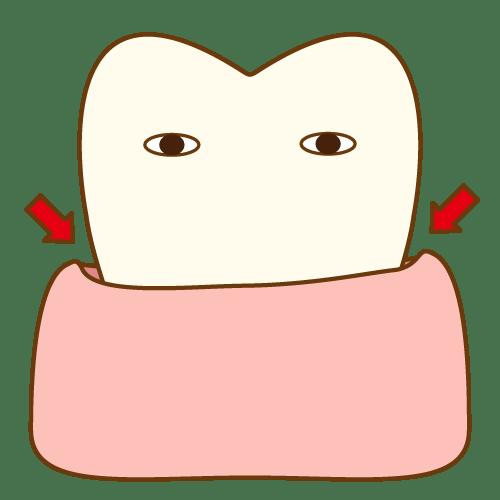 歯周ポケット|イラストNo.481【歯科素材.com】 (7909)