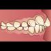 「出っ歯」を治したい・・・審美歯科ではどんな治療法があるの?