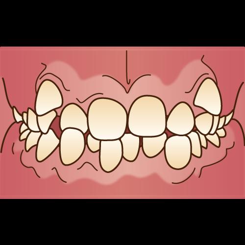 不正咬合(叢生)|イラストNo.1099【歯科素材.com】 (8202)
