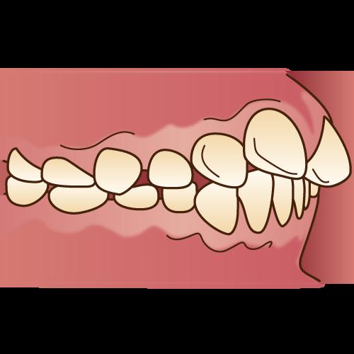 不正咬合(上顎前突・側面)|イラストNo.1103【歯科素材.com】 (8203)