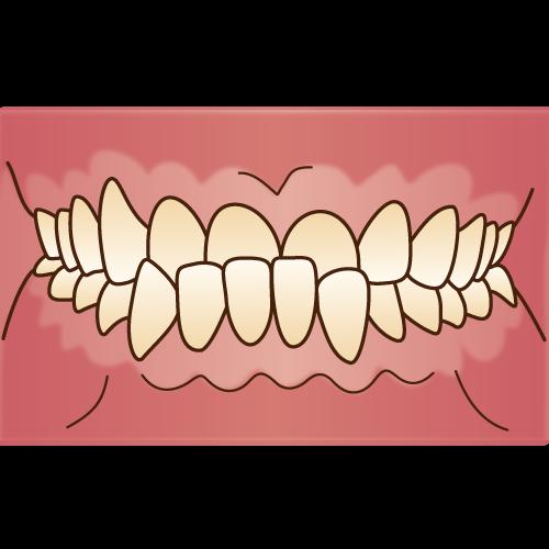 不正咬合(下顎前突)|イラストNo.1101【歯科素材.com】 (8204)