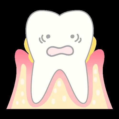 歯周病のメカニズム(骨が溶けている)|イラストNo.1634【歯科素材.com】 (8794)