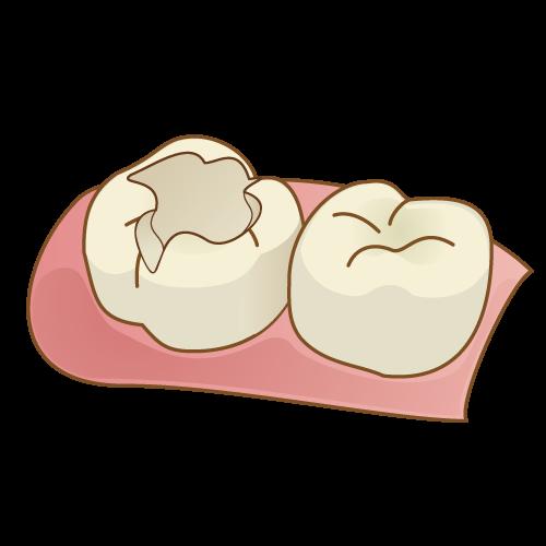 詰め物の比較(予防めに削った歯)|イラストNo.778【歯科素材.com】 (9490)