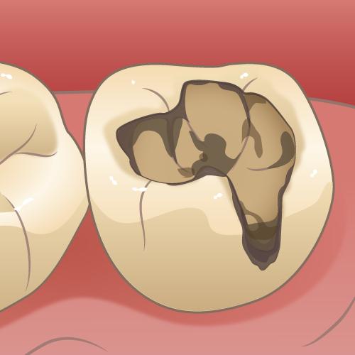 二次カリエス(虫歯が再発、進行)|イラストNo.1709【歯科素材.com】 (9499)