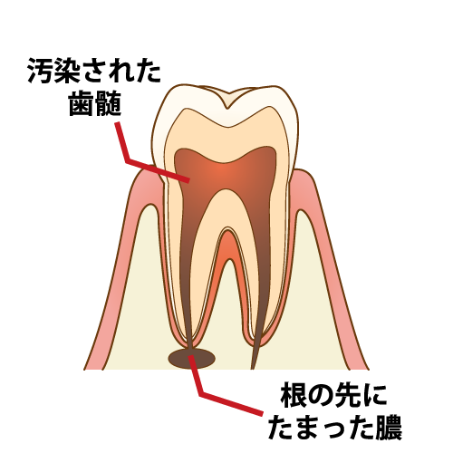 膿のたまった歯